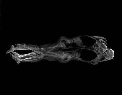 日本艺术家用X射线拍摄情侣亲密